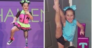▷ A pesar de que tuvieron que amputar su pierna no renunció a su sueño de ser bailarina
